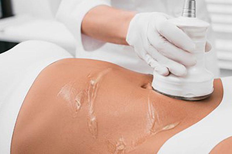 Tratamiento flacidez abdominal